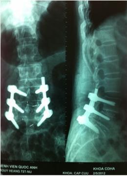 Hình ảnh chẩn đoán bệnh thoát vị đĩa đệm cột sống